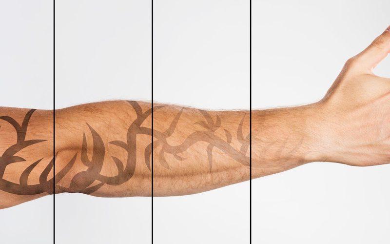 Wil jij een tattoo weg laten laseren Amsterdam?
